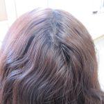 くせ毛で左右の生え方違うの~どうにか成らないかしら~~