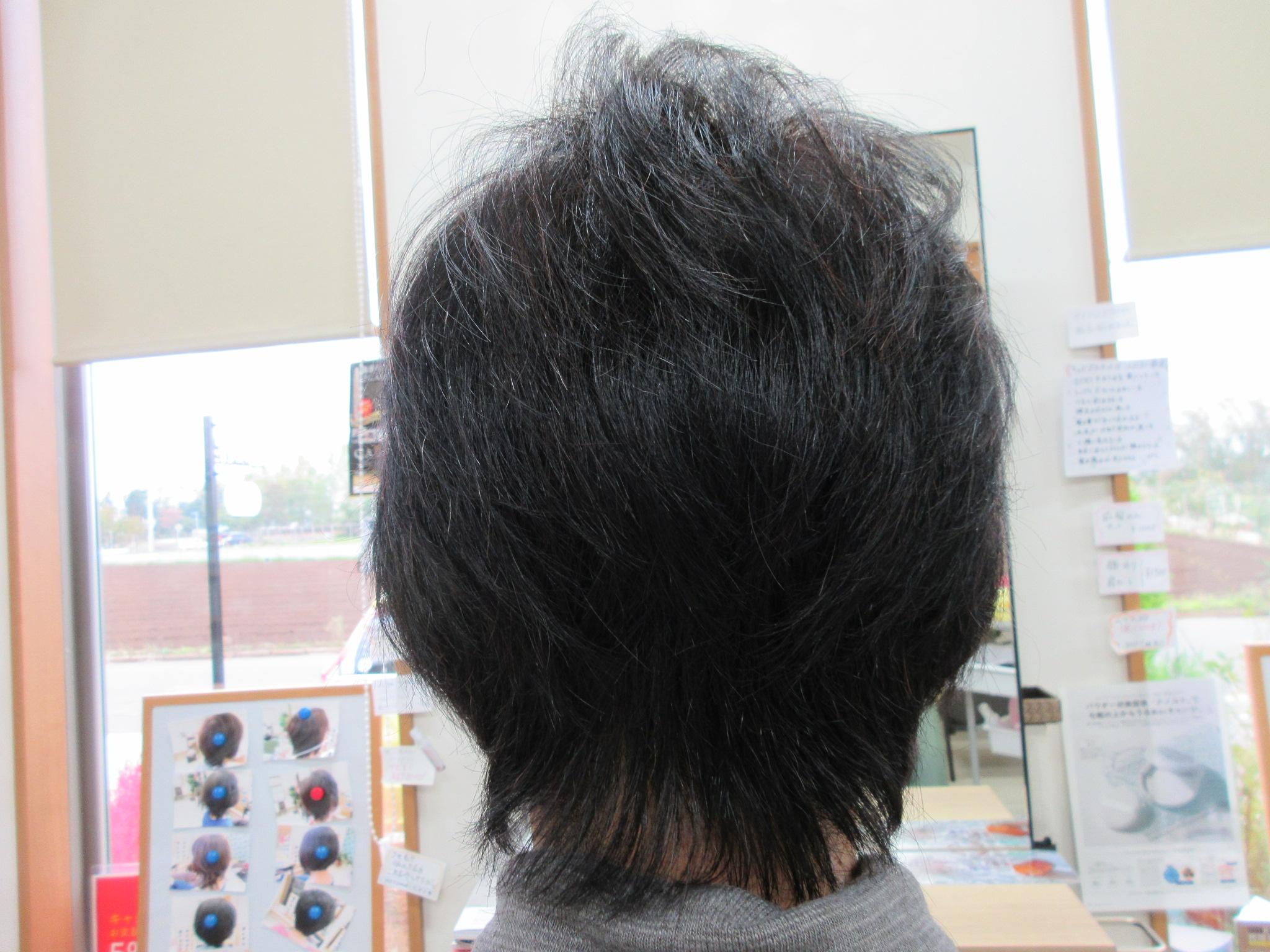 うす毛で悩まれてのご来店です!