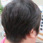 頭皮のダメージやトラブル改善